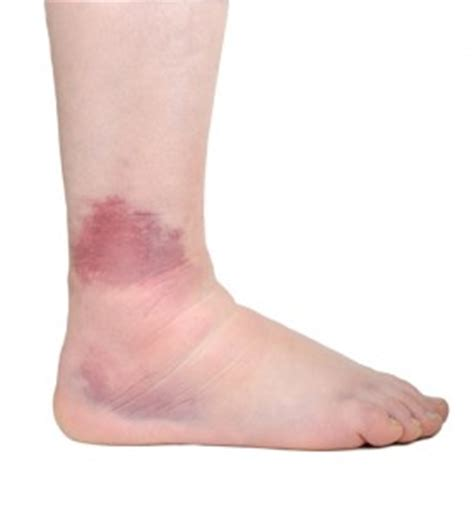 Ankle Sprain - G4 Physiotherapy & Fitness