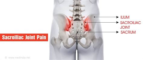 Sacroiliac (SI) Joint Dysfunction During and After Pregnancy