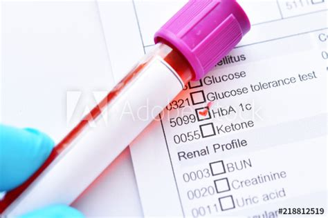 """Blood sample tube with laboratory requisition form for"