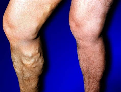 Removal of Varicose Veins | Specialist Varicose Vein