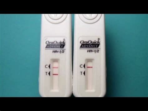 FDA has approved Home HIV Test Kit - YouTube