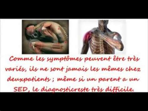 Syndrome d'Ehlers-Danlos - YouTube