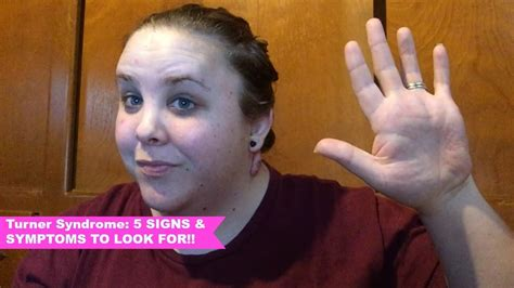 Turner Syndrome: 5 SIGNS AND SYMPTOMS TO LOOK FOR!! - YouTube