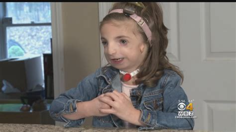 'Wonder' Movie Touches Home For Haverhill Girl With